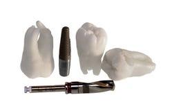 Dentes e implantes imagens de stock royalty free