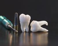 Dentes e implantes fotografia de stock
