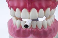 Dentes e um cigarro Fotografia de Stock Royalty Free