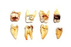 Dentes extraídos em um fundo branco Imagem de Stock Royalty Free