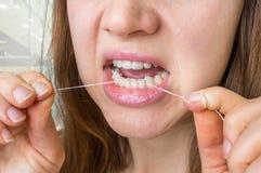 508ecb5d1 Dentes Flossing Da Mulher Com Fio Dental Imagem de Stock - Imagem de ...