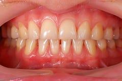 Dentes humanos Fotografia de Stock