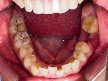 Dentes humanos de deterioração Imagens de Stock