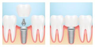 Dentes humanos e esquema do corte do implante dental Ilustra??o conservada em estoque do vetor ilustração royalty free