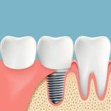Dentes humanos e implante dental Anatomia da cavidade oral stoc Imagem de Stock Royalty Free