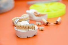 dentes Metalo-acrílicos Fotografia de Stock