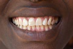 Dentes naturais Fotografia de Stock Royalty Free