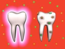 Dentes. Protegido e com cárie Fotos de Stock