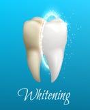 Dentes que claream o conceito com o dente limpo e sujo ilustração do vetor