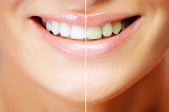 Dentes que whitening Foto de Stock