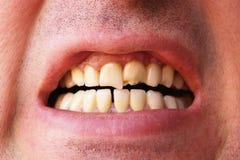 Dentes quebrados Imagem de Stock Royalty Free