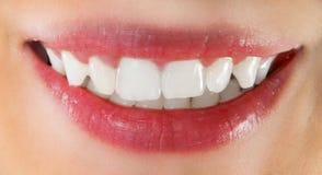 Dentes saudáveis brancos Fotos de Stock Royalty Free