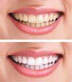 Dentes saudáveis e sorriso Fotografia de Stock