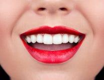 Dentes saudáveis da mulher Fotografia de Stock Royalty Free
