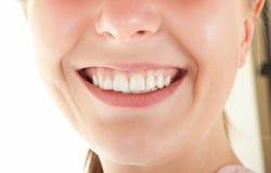 Dentes visíveis Fotografia de Stock