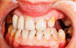Denti Fotografie Stock