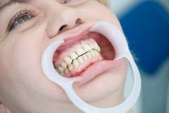 Denti Fotografie Stock Libere da Diritti