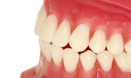 Denti Fotografia Stock Libera da Diritti