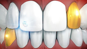 Denti anteriori con l'impianto ed i eyeteeth della pietra preziosa in oro Fotografia Stock Libera da Diritti