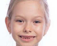 Denti cambianti fotografie stock libere da diritti