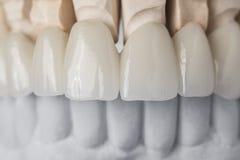 Denti ceramici nella parte anteriore Fotografie Stock