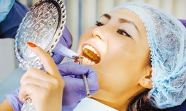 Denti che imbiancano procedura fotografie stock libere da diritti
