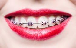 Denti con i ganci Fotografia Stock Libera da Diritti