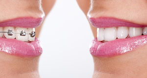 Denti con i ganci Immagini Stock Libere da Diritti