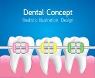 Denti con i ganci Colourful, concetto di cure odontoiatriche, vettore realistico illustrazione vettoriale