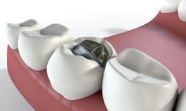 Denti con il materiale da otturazione del cavo Fotografie Stock