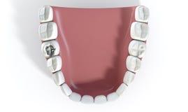 Denti con il materiale da otturazione del cavo Fotografie Stock Libere da Diritti