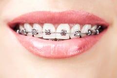 Denti con le parentesi graffe Fotografia Stock Libera da Diritti