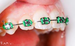Denti con le parentesi graffe Fotografia Stock