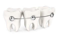 Denti con le parentesi graffe Immagine Stock Libera da Diritti