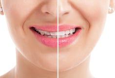 Denti con le parentesi graffe Immagini Stock