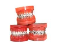 Denti con le parentesi graffe isolate fotografia stock