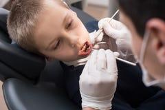Denti d'esame del dentista pediatrico del paziente del ragazzo in clinica dentaria facendo uso degli strumenti dentari - sonda e  immagini stock