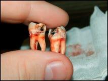 Denti del giudizio Fotografie Stock Libere da Diritti