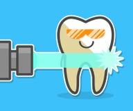 Denti del laser che imbiancano concetto Fotografie Stock