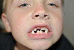 Denti di latte Immagini Stock Libere da Diritti