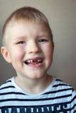 Denti di latte mancanti del ragazzo Immagini Stock Libere da Diritti