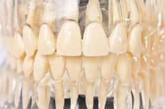 Denti di modello in gomme di plastica Fotografia Stock Libera da Diritti