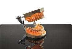 Denti di modello su granito nero Immagini Stock Libere da Diritti