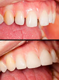 Denti di Porcealain Fotografia Stock