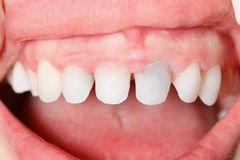 Denti di zircone Immagine Stock Libera da Diritti