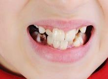 Denti difettosi, primo piano fotografie stock