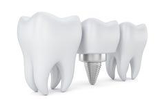 Denti ed innesto dentale Fotografia Stock