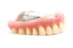 Denti falsi prostetici Immagine Stock