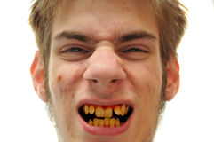 Denti gialli Fotografie Stock