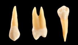 Denti isolati sul nero immagini stock